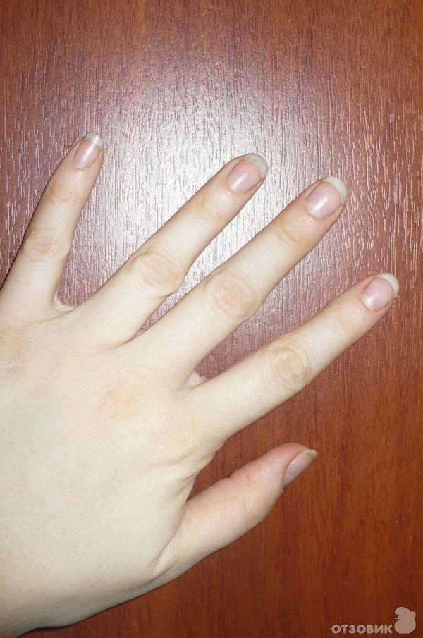 Что делать если ногти не растут в домашних условиях 758
