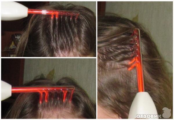 Лечение волос током