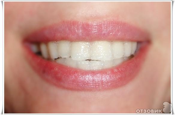 Отбеливающие полоски для зубов crest