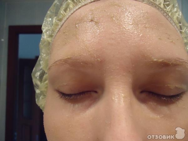 литокомплекс на лице