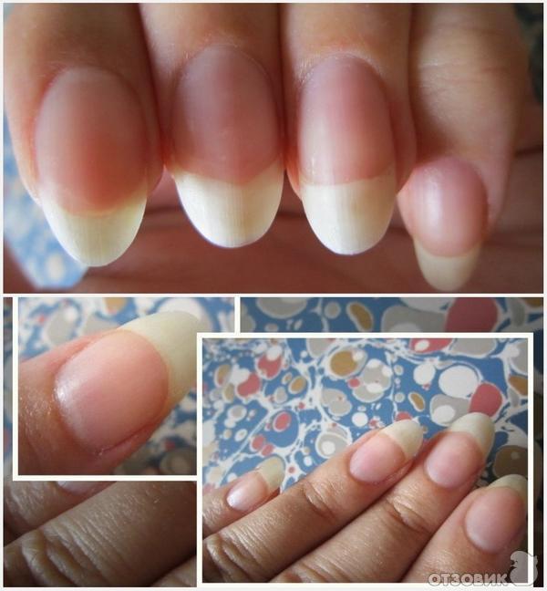 Витамины для ногтей и волос.отзывы