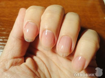 Обычные ногти