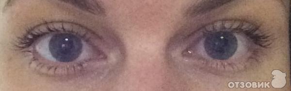 У меня на одном глазу меньше ресниц