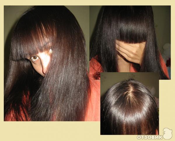 Волосы после крапивы