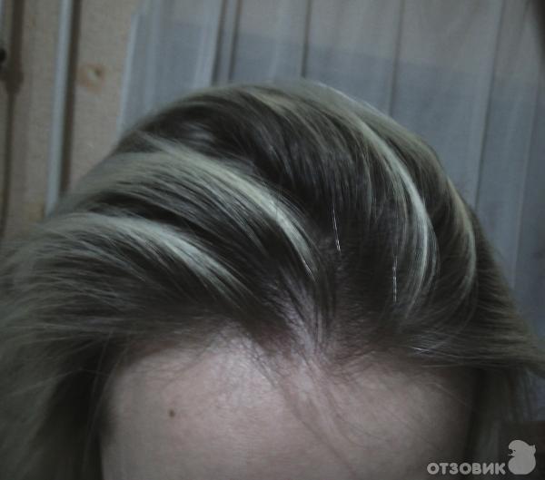 Это выпадение волос считается аутоиммунным заболеванием, при котором иммунная система атакует волосяные фолликулы и