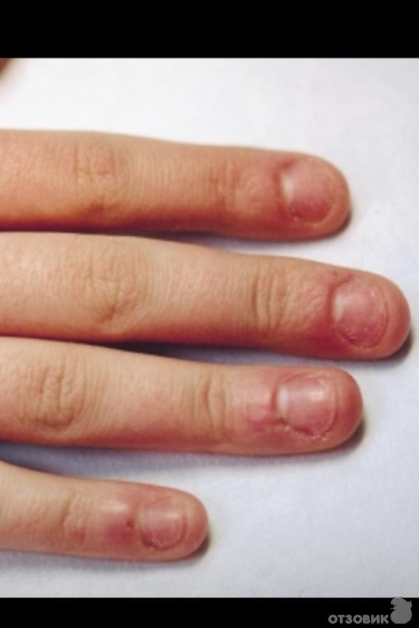 На грызанные ногти