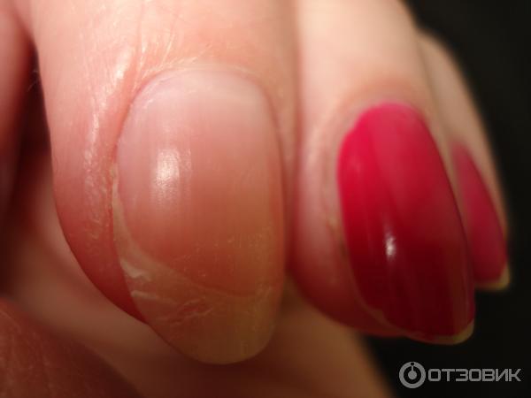 Гель-лак отпал с ногтей