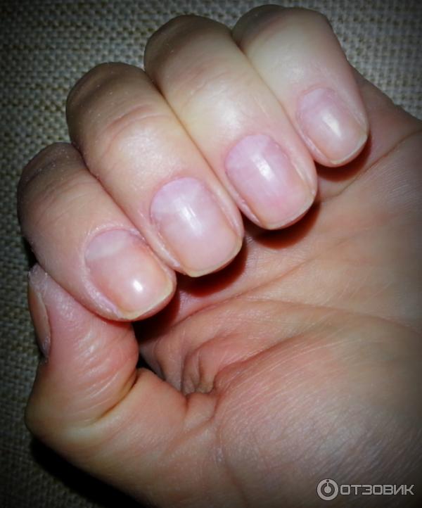 Отросшие ногти после гель лака