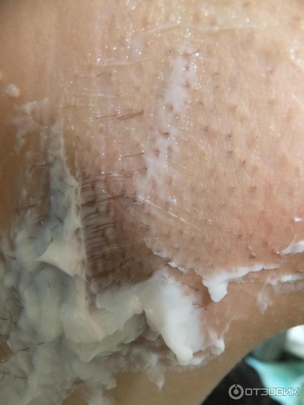 Обезболивающий крем эмла ДЛЯ