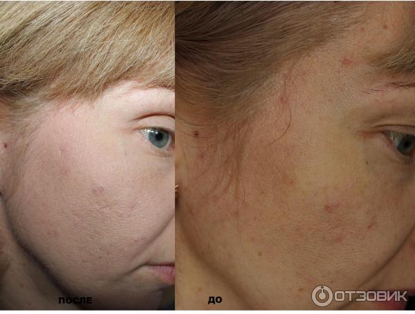 Тональный крем для проблемной кожи своими руками