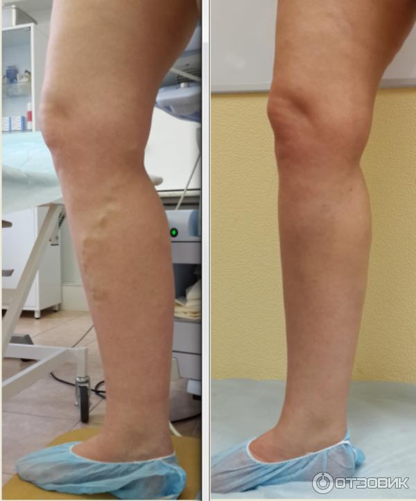 Операция по удалению варикоза на ногах цена