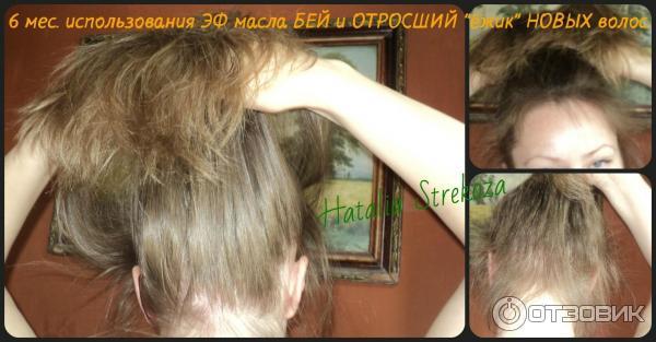 Эфирное масло бэй для волос отзывы
