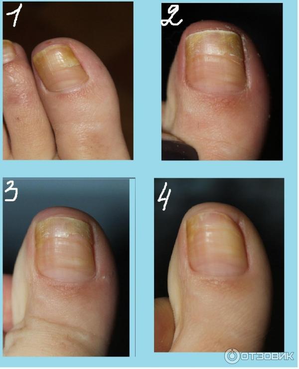 Как вылечить грибок ногтей микозаном
