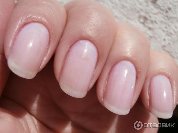 Цвет здорового ногтя