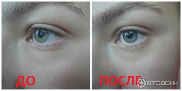 Vichy для кожи вокруг глаз от морщин