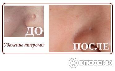 Как избавиться от мелких бородавок на лице