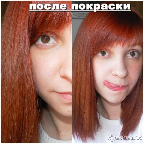 как предотвратить выпадение волос с головы