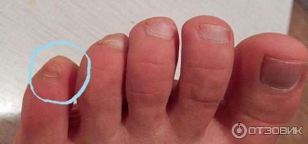 Какой мазью лечить грибок пальцев рук