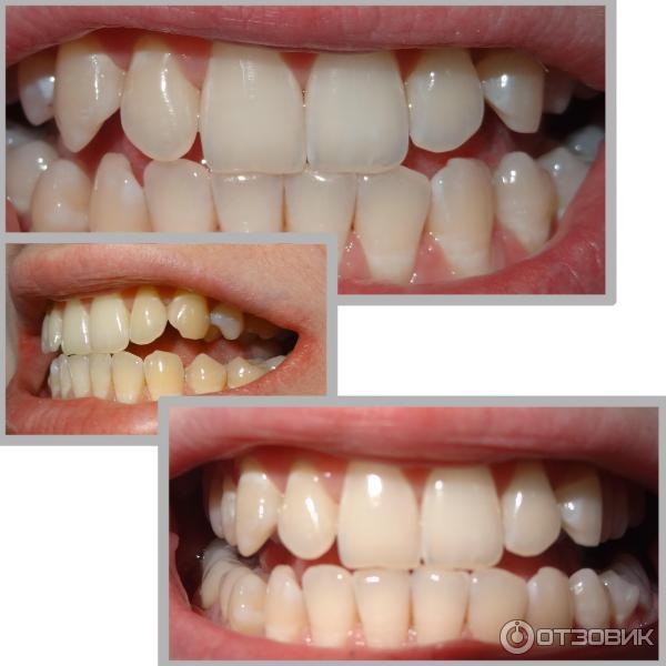 Отзывы пациентов, которые делали профессиональное отбеливание зубов (лампой и гелем), оставленные на сайте pro-gta5.ru, влияют на общий рейтинг клиники.