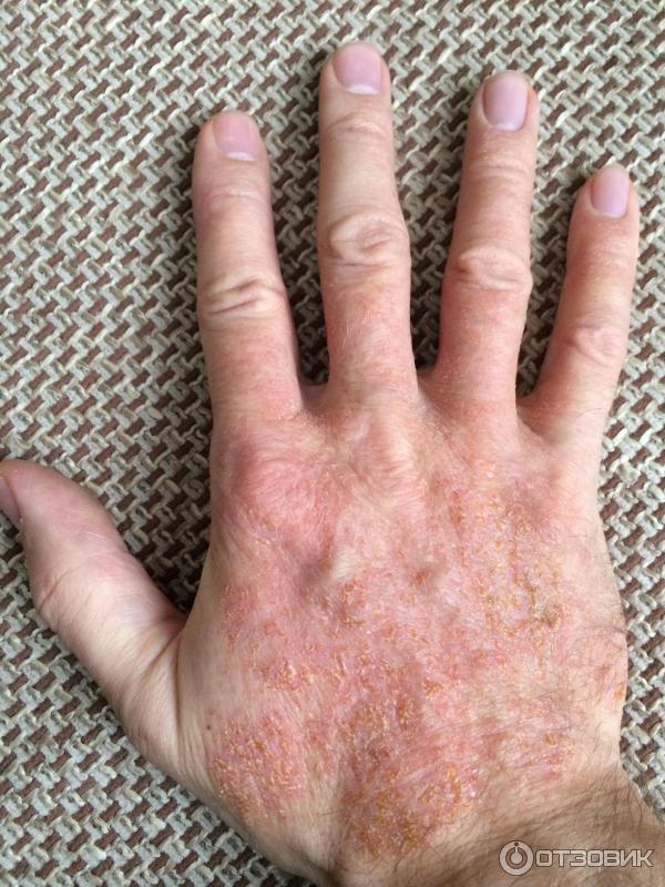 Почему трескается кожа на пальцах рук зимой