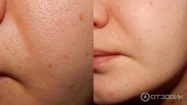Пилинг лица хлористым кальцием отзывы