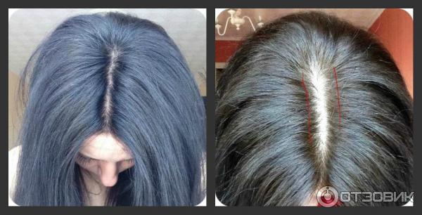 Никотиновая кислота волосы