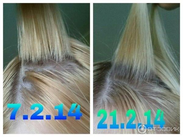 Как отрастить быстро волосы отзывы с фото до и после