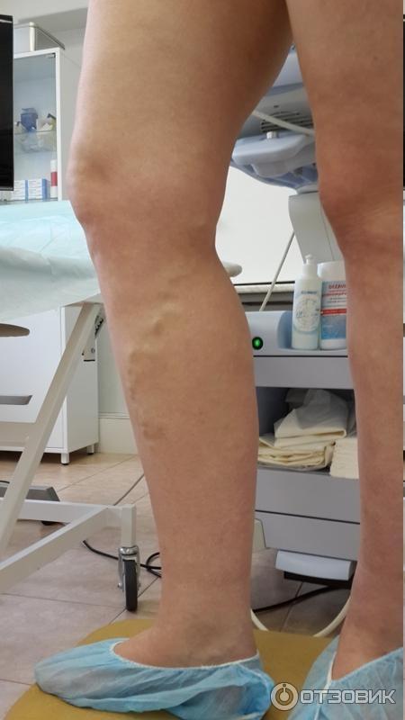 Гирудотерапия при варикозе нижних конечностей
