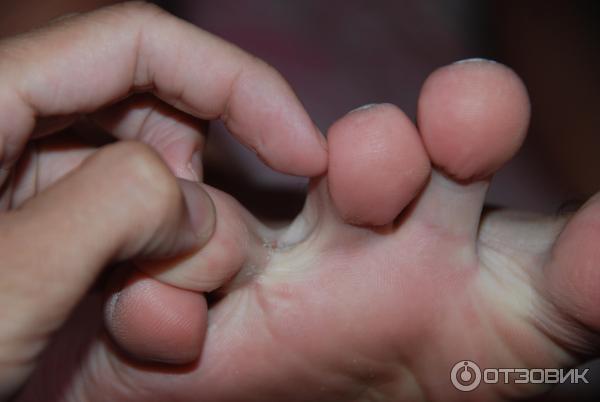 Грибок ногтей на ногах лечение экзодерил отзывы