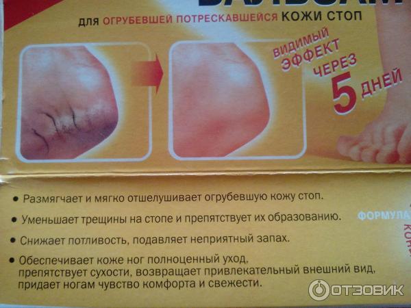 Как сделать кожу ступней мягкой в домашних условиях