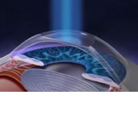 Операция на глаза если зрение на плюс