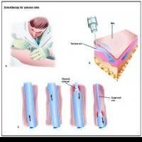 Троксевазин гель отзывы при варикозе