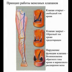 Болят вены под коленом сзади