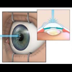 Методика и упражнения для восстановления зрения