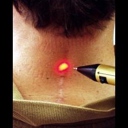 Как прижечь бородавку жидким азотом