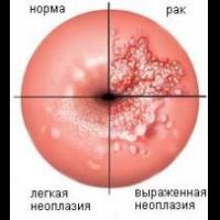 Лечение эрозии шейки матки народными средствами, в 67