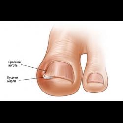 Отзывы лазерная коррекция вросшего ногтя
