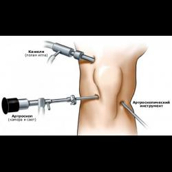 Стоимость операции артроскопии коленного сустава в уфе суставная щель челюсти определить