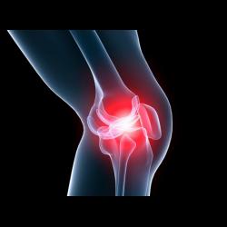 Болезнь суставов отсутствие смазки заболевание сустава на латыни