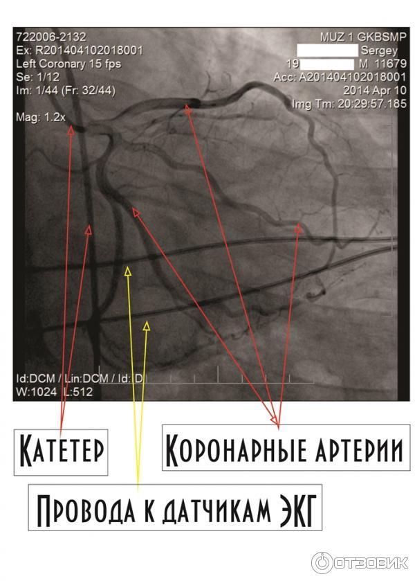 Коронарография сосудов сердца последствия