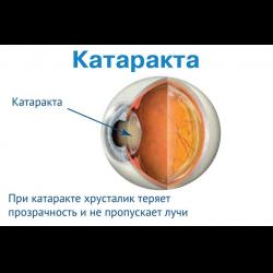 Отзыв о Операция по удалению катаракты с заменой хрусталика ...